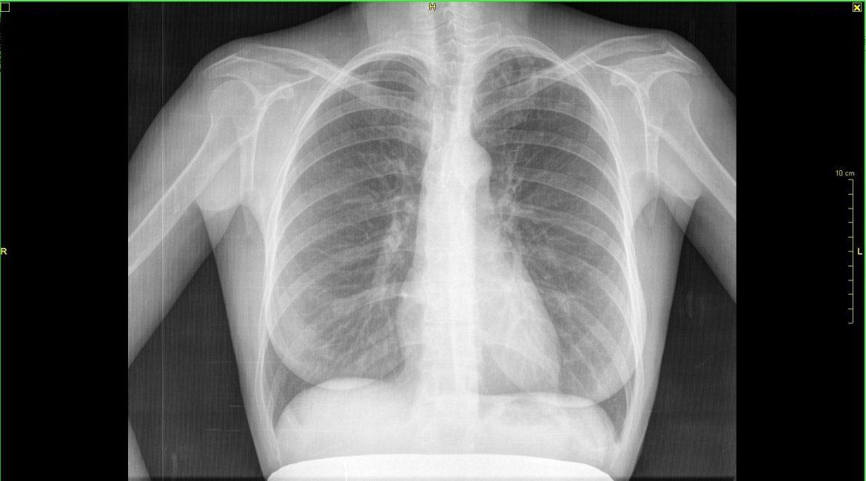 Накануне Всемирного дня борьбы с туберкулезом в Приамурье проводится ряд мероприятий